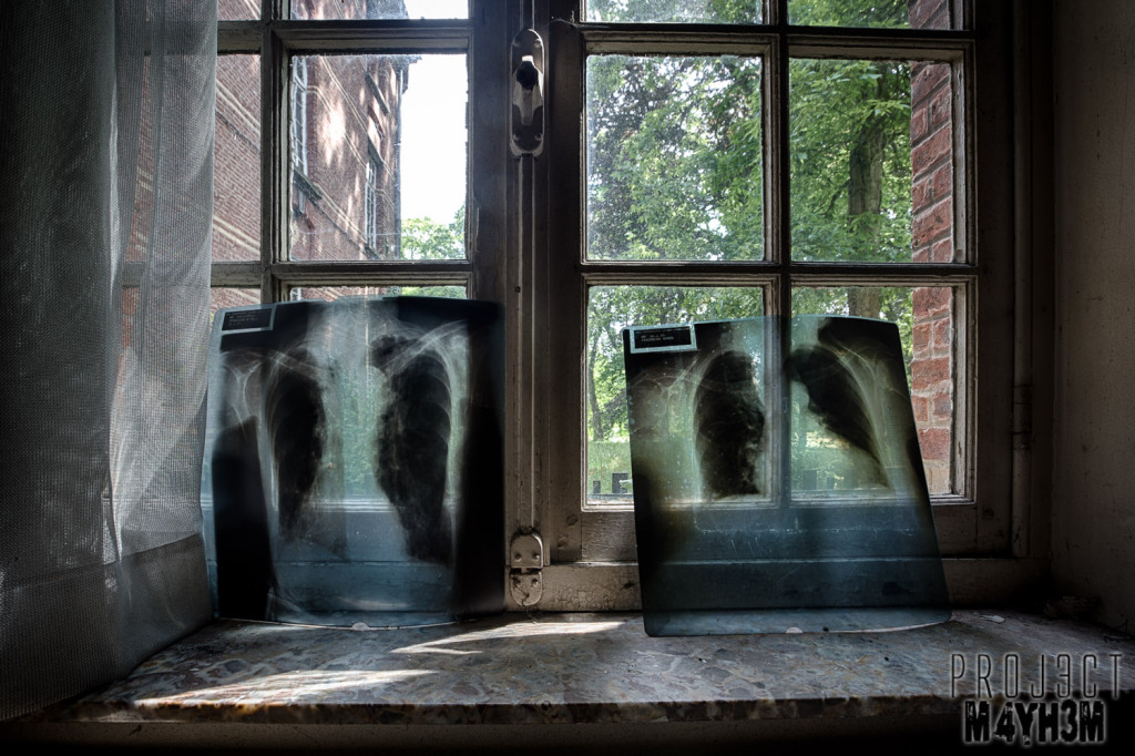 Salve Mater Psychiatric Hospital - X-ray
